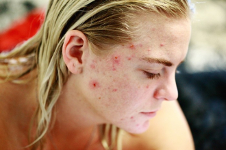 Co jíst a čemu se vyhnout při akné?