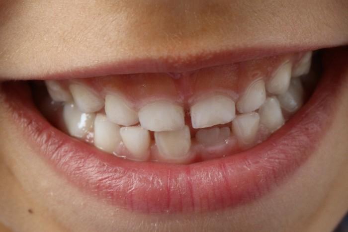 Jak na zánět dásní