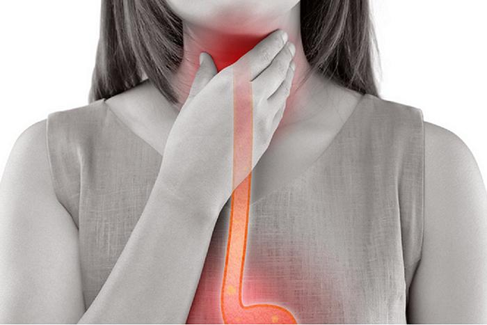 Jícnový reflux