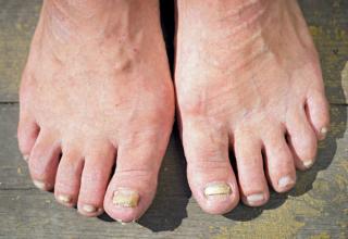 Plíseň na nohou - problém, který dokáže potrápit